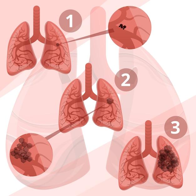 Infografía del sistema pulmonar, estilo cartoon. Vector Premium