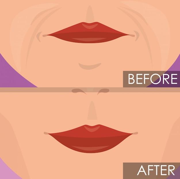 Labios de mujer antes y después del tratamiento. vector gratuito