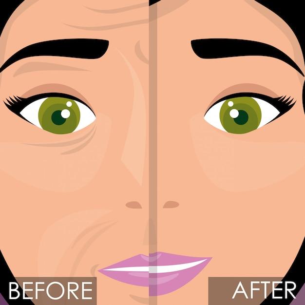 Mujer antes y después del tratamiento de la piel. vector gratuito