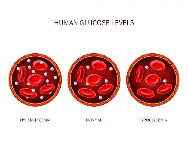 Niveles de glucosa en humanos hiperglucemia, normal, hipoglucemia Vector Premium
