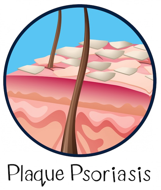 Una placa de anatomía humana psoriasis | Descargar Vectores Premium