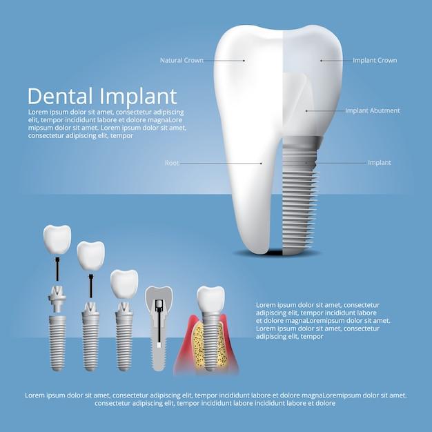 Plantilla de implante dental y dientes humanos vector gratuito