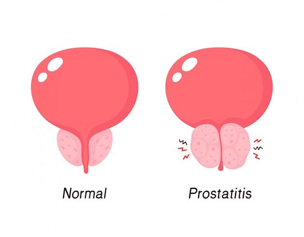 prostatitis qué hacer gráfico