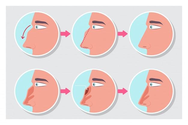 Rinoplastia antes y después de la infografía del procedimiento. Vector Premium