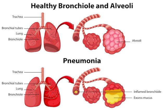 Saluda e insalubre de los pulmones humanos. vector gratuito