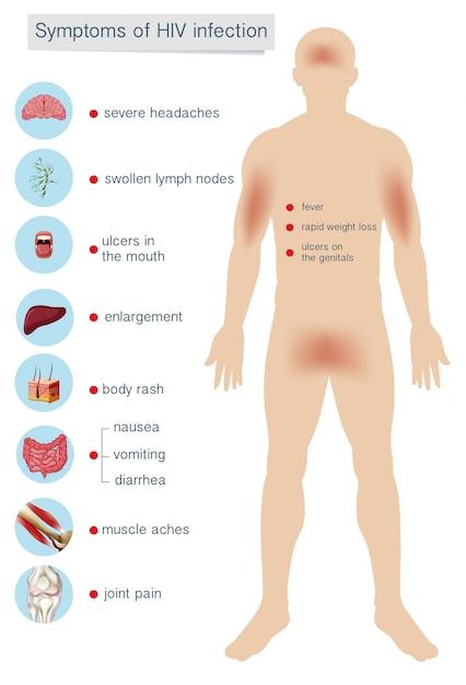 Síntomas de la anatomía humana de la infección por vih | Descargar ...