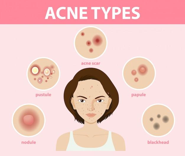 Tipos de acné en la piel o espinillas. vector gratuito