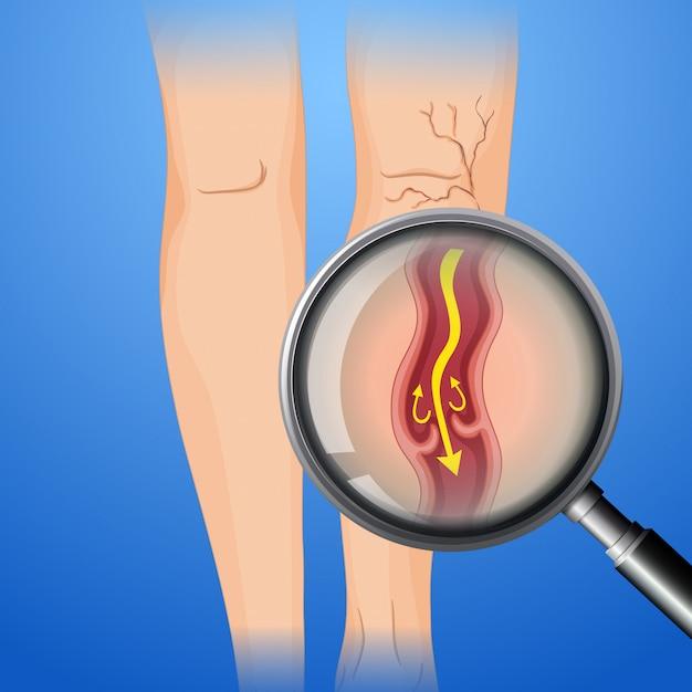 Trombosis venosa profunda en la pierna Vector Premium