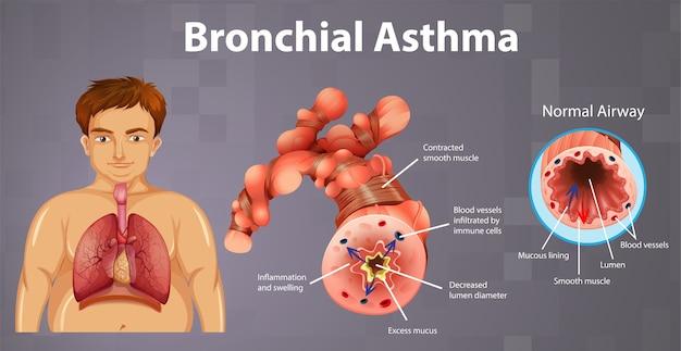 Tubo bronquial inflamado por asma vector gratuito