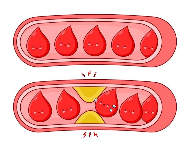 Vasos sanguíneos normales y obstruidos. ilustración de personaje de kawaii de dibujos animados de línea plana. aislado sobre fondo blanco. Vector Premium