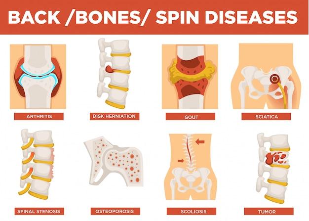 Vector de explicación de enfermedades de espalda, huesos y espín humano Vector Premium