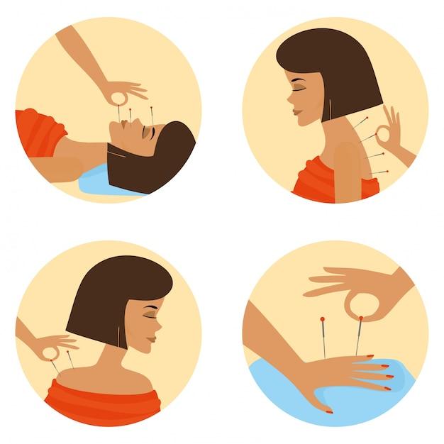 Akupunktur-sitzung Kostenlosen Vektoren