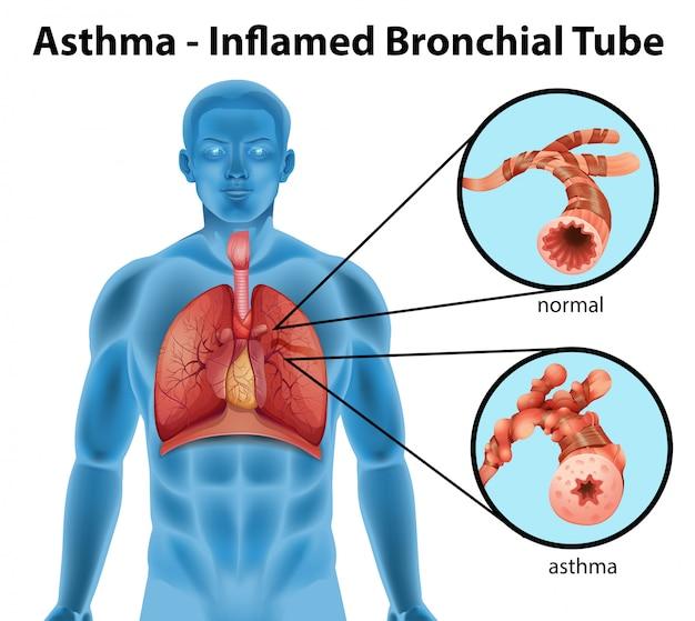 Asthma entzündete bronchien Kostenlosen Vektoren