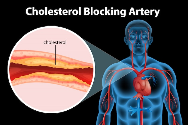 Ateriosklerose krankheit Kostenlosen Vektoren