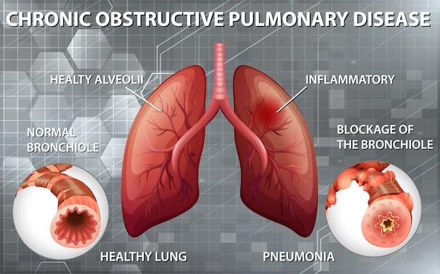 Chronisch obstruktive lungenerkrankung Kostenlosen Vektoren