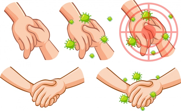 Coronavirus-thema mit hand voll von keimen, die andere hand berühren Kostenlosen Vektoren