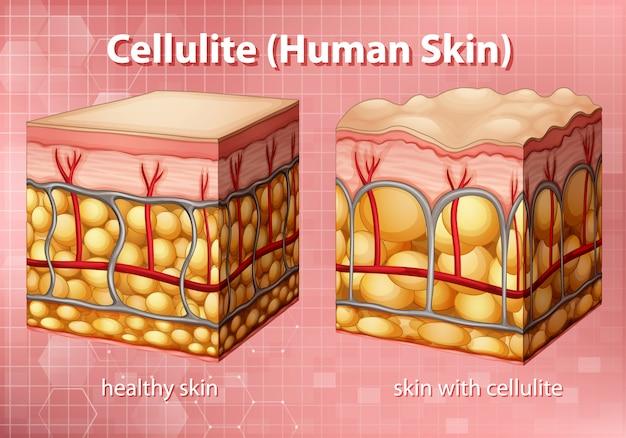 Diagramm, das cellulite in der menschlichen haut zeigt Kostenlosen Vektoren