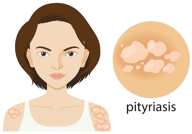 Diagramm, das frau mit pityriasis zeigt Kostenlosen Vektoren