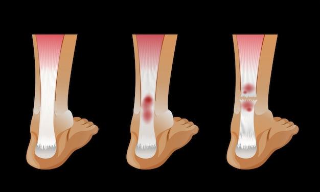 Diagramm, das gebrochenen Knochen im menschlichen Fuß zeigt ...