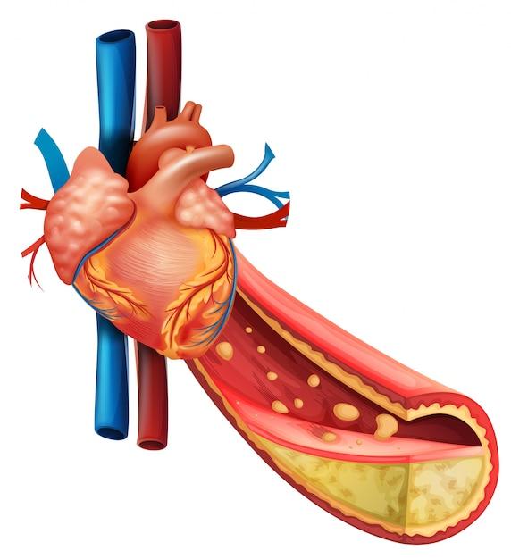 Diagramm, das menschliches Herz und fette Adern zeigt   Download der ...