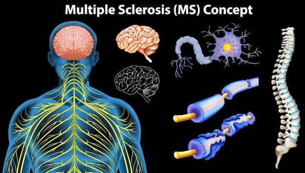 Diagramm mit multiple sklerose konzept Premium Vektoren