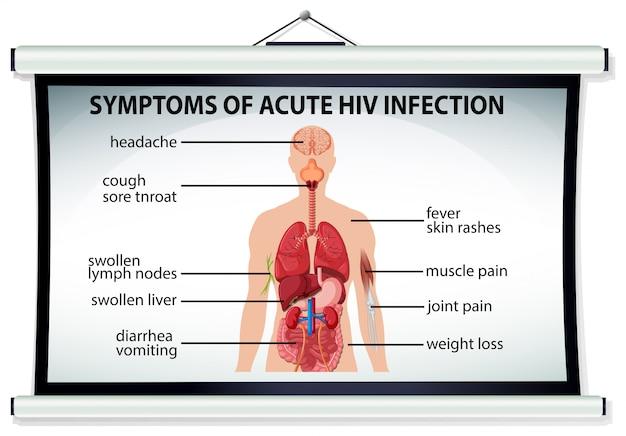 Diagramm mit symptomen einer akuten hiv-infektion Kostenlosen Vektoren