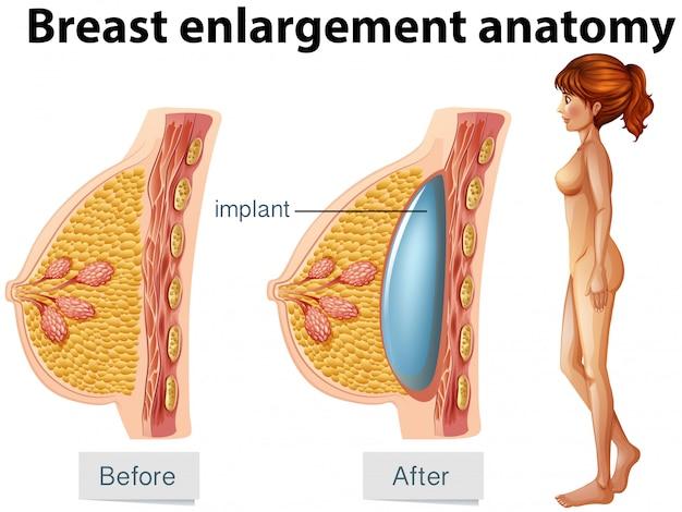Eine menschliche Anatomie des Brustimplantats   Download der Premium ...