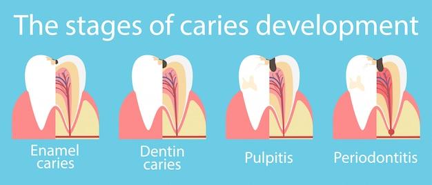 Entwicklung von zahnkaries-banner Premium Vektoren
