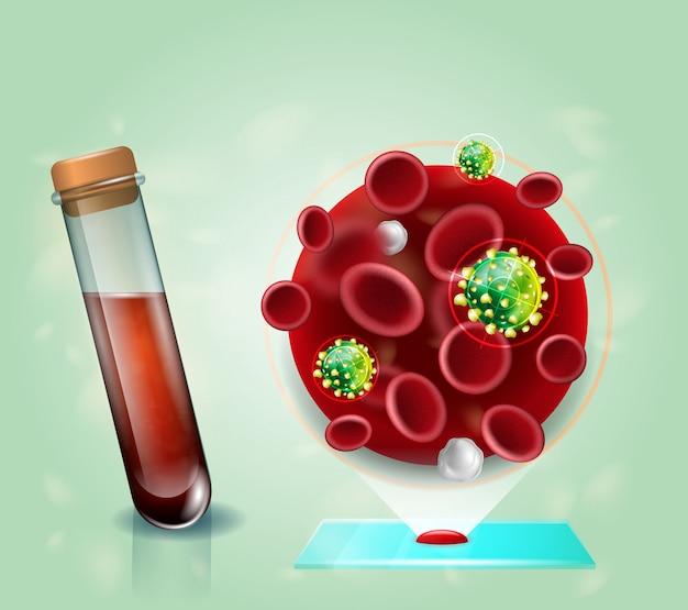 Hiv-virus-blutprobe-realistisches vektor-konzept Premium Vektoren