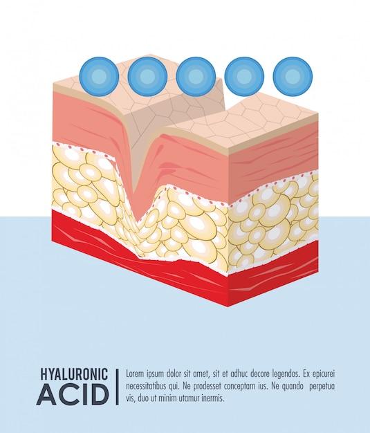 Hyaluronsäure füllstoff injektion infographik Premium Vektoren