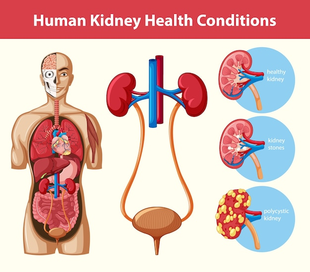 Infografik der menschlichen nierengesundheit infografik Kostenlosen Vektoren