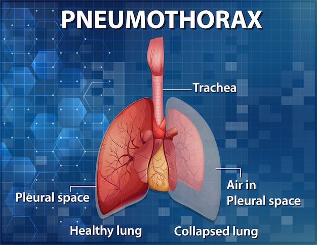 Informative darstellung des pneumothorax Kostenlosen Vektoren