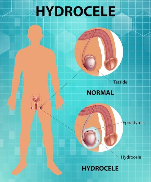 Medizinisches poster mit unterschied zwischen männlichem normalem hoden und hydrocele Kostenlosen Vektoren