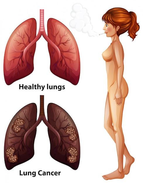 Menschliche Anatomie Lunge des Rauchers | Download der Premium Vektor