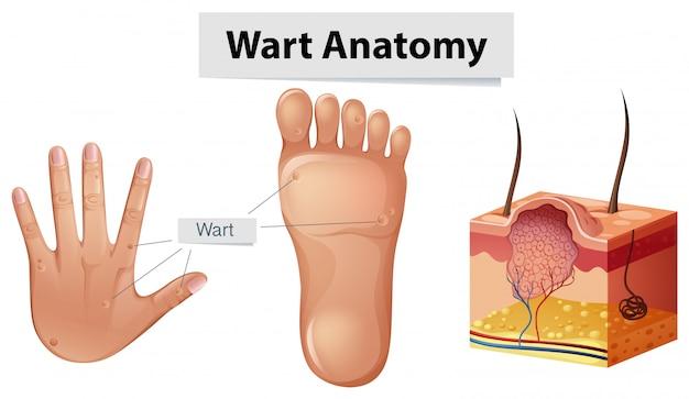 Menschliche Anatomie-Warze auf Hand und Fuß | Download der Premium ...