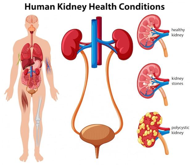 Menschliche nieren-gesundheits-bedingungen Premium Vektoren
