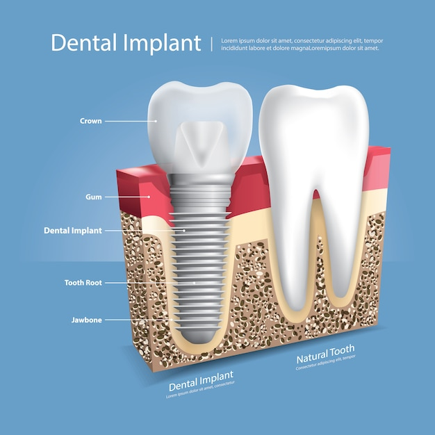 Menschliche zähne und zahnimplantat-vektor-illustration Premium Vektoren