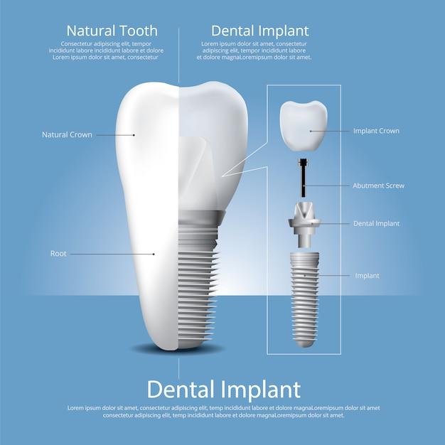 Menschliche zähne und zahnimplantat Premium Vektoren