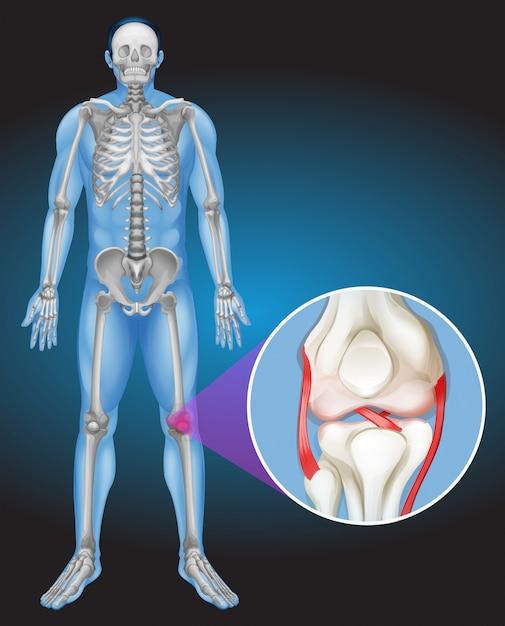 Menschlicher Körper und Schmerzen im Knie | Download der Premium Vektor
