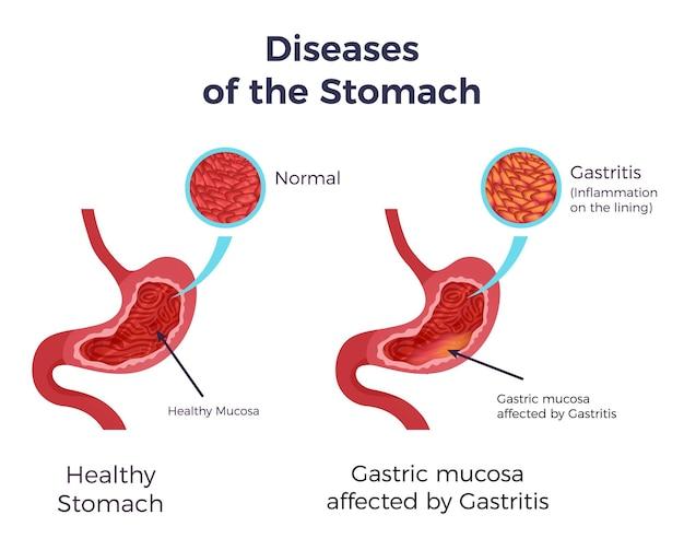 Menschlicher normaler magen im vergleich zu gastritis betroffen geschwollene entzündete schleimhaut futter flach infografik poster Kostenlosen Vektoren
