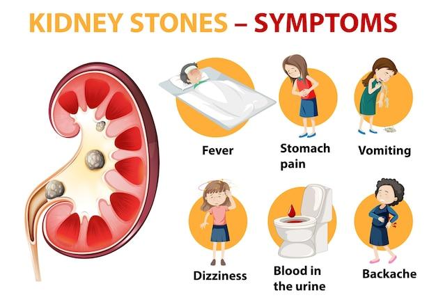 Nierenstein symptome symptome cartoon-stil infografik Kostenlosen Vektoren