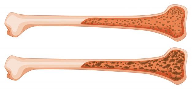 Osteoporose im menschlichen knochen Kostenlosen Vektoren