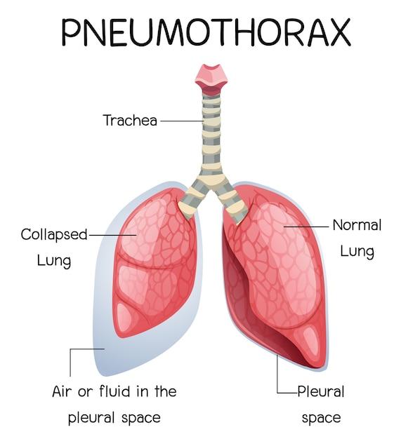 Pneumothorax-karikatur der menschlichen anatomie Premium Vektoren