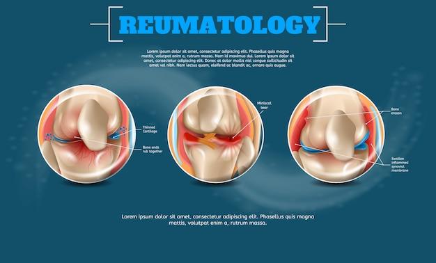 Realistische illustration reumatologie mit textvorlage Premium Vektoren