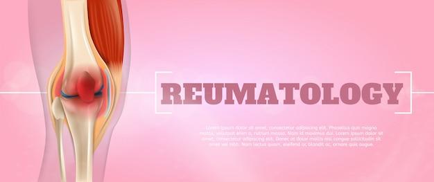 Realistische illustrations-reumatologie-medizin in 3d Premium Vektoren