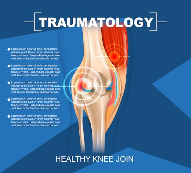 Realistische illustrations-traumatologie-medizin in 3d Premium Vektoren