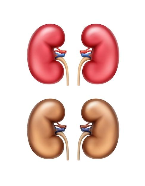 Realistische rote gesunde und braune erkrankte menschliche nieren Premium Vektoren
