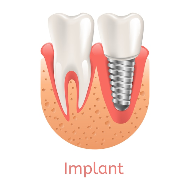 Realistisches illustrations-zahn-implantat in der grafik 3d Premium Vektoren