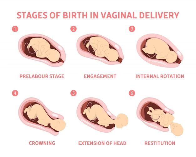 Stadien der geburt eines kindes in der vaginalen entbindung. Premium Vektoren