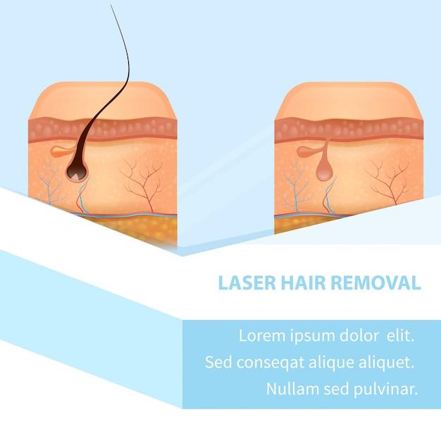 Vertikales banner zur laser-haarentfernung vorher nachher Premium Vektoren